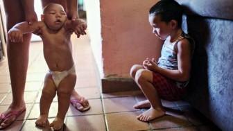 Zika Virüsü Nedir, Nasıl bulaşır, Belirtileri Nelerdir ?