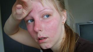 Yüz Kızarıklığı Neden Oluşur ?