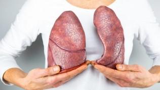 Tüberküloz Nedir? Belirtisi ve Tedavileri Nelerdir?
