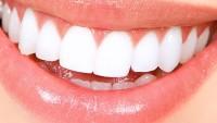 Diş Beyazlatmada Doğal Yöntemler