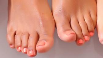 Tırnak Batması Nedir ? Nasıl Tedavi Edilir ve Önlenir