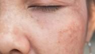 Cosmelan nedir ve Cosmelan leke tedavisi nasıl uygulanır? Cosmelan nasıl kullanılır?
