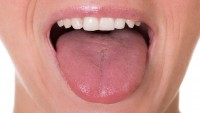 Dilin yapısına göre hastalık belirtileri neler rengi soluksa…