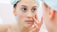 Maskeye bağlı cilt problemlerini önlemek için 9 öneri