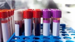 Uzmanlardan 0 kan grubu olanlara müjde! Tansiyon ve kansere…
